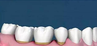 牙槽骨萎缩